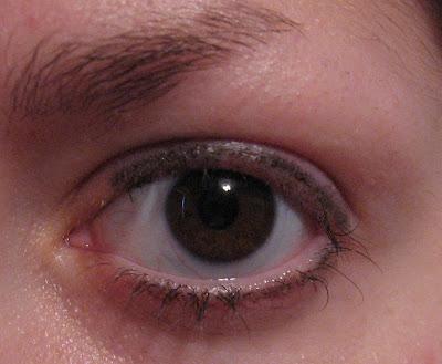 evidence of my bald eyelids and missing eyelashes