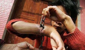 Las cadenas se integran en la carne de un hombre