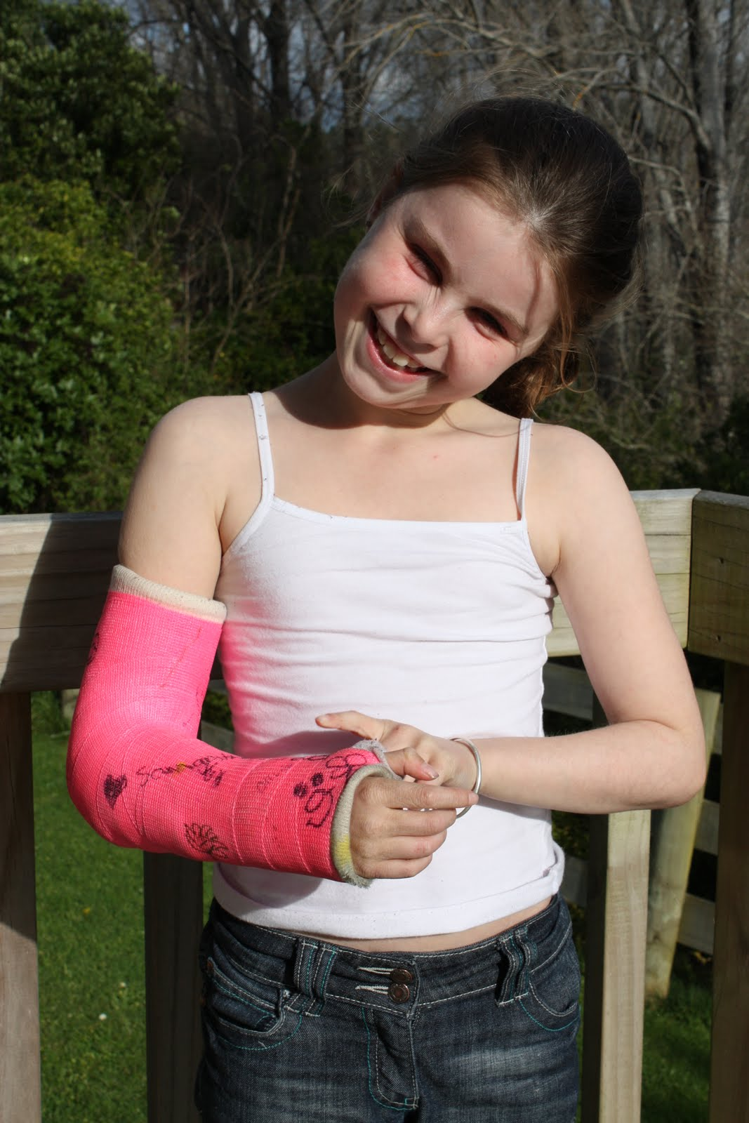 The Haysteed Family Blog: my cast is coming off soon!!!!