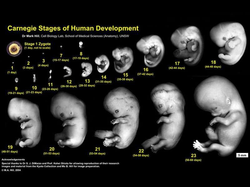 Pregnancies Under 18 Years in Guatemala  Pregnancies Und...
