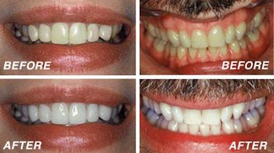 Quickest Way To Whiten Teeth Naturally