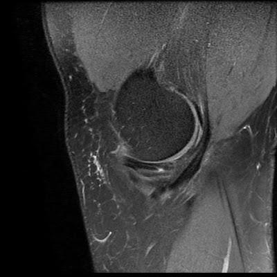 Radiology Cases: Parrot Beak Tear