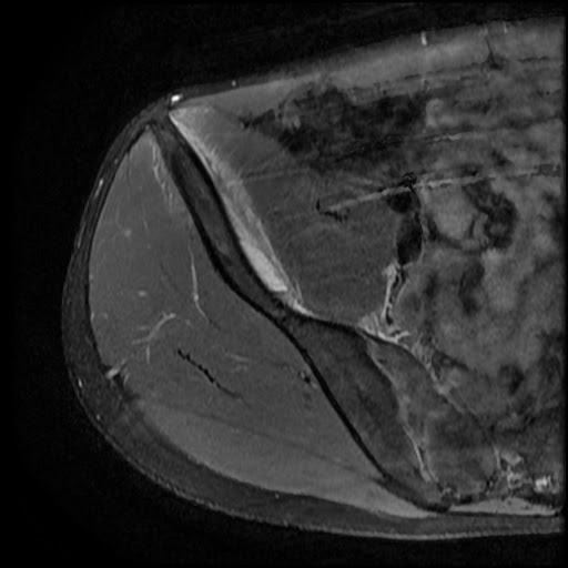 Radiology Cases Rectus Femoris Partial Tear And Sub