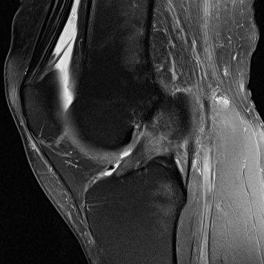 Radiology Cases Partial Acl Tear