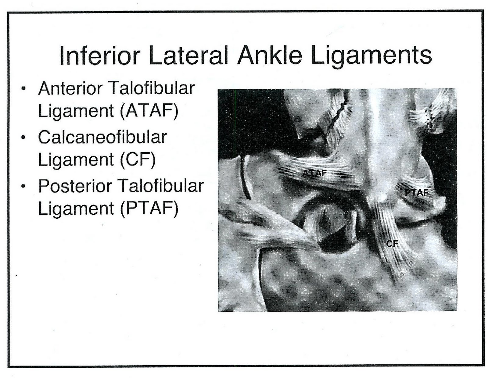 Radiology Cases Lateral And Medial Ankle Ligaments
