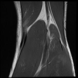 Radiology Cases Fabellofibular Ligament