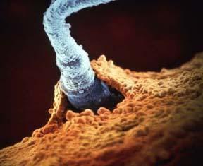 how do sperm cells and egg meet in codru