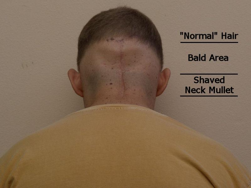 [Neck+Mullet+Shaved+Black.jpg]