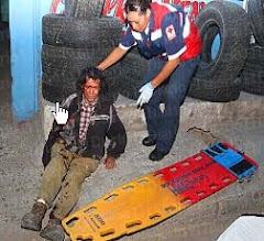 Salvadoran Man Falls From Train, Losing Arm