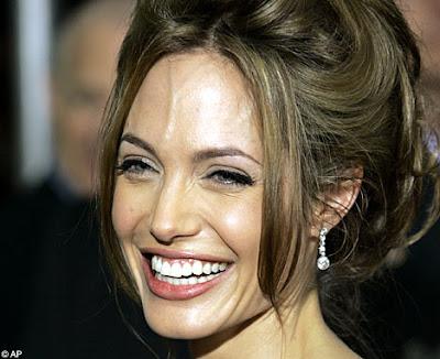 Is a forehead vein a turn off? : askgaybros