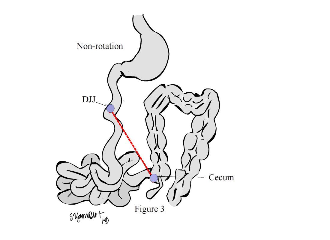 Pediatric Surgery Zone: Rotational anomalies of the midgut