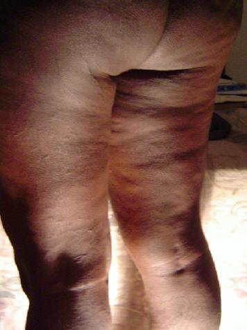 celulitis en la parte interna del muslo