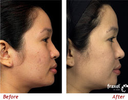 Acne Scar Removal Acne Scars Before And After Pictures