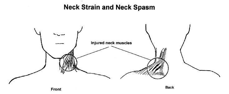 Physiotherapy: Neck pain/Neck spasm