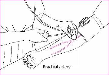 diagram of blood vessels nurse base: positioning the blood pressure cuff blood pressure diagram of correct posture