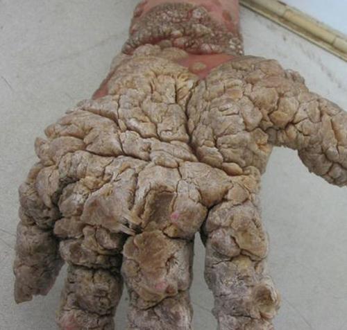 Condiloma verruga genital fotos