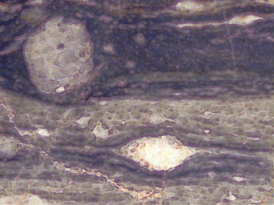 Not an eye, but a modified image of augen gneiss, a metamorphic rock, named, for obvious reasons, from the German for eye.
