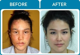 Nu Skin Demonstrated Galvanic Spa Erases Signs Of Scars From Burns