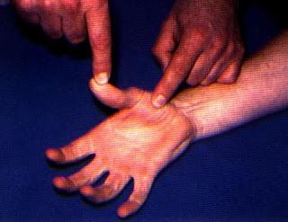 向前走: 手指疼痛卡住~板機指~機槍指~彈弓指