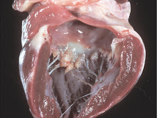 Endocardiosis (canino)