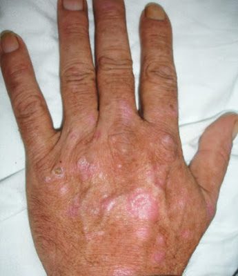 Hepatitis causes and effects