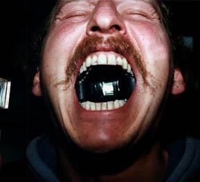 White film inside mouth morning - Tamil movie kandasamy