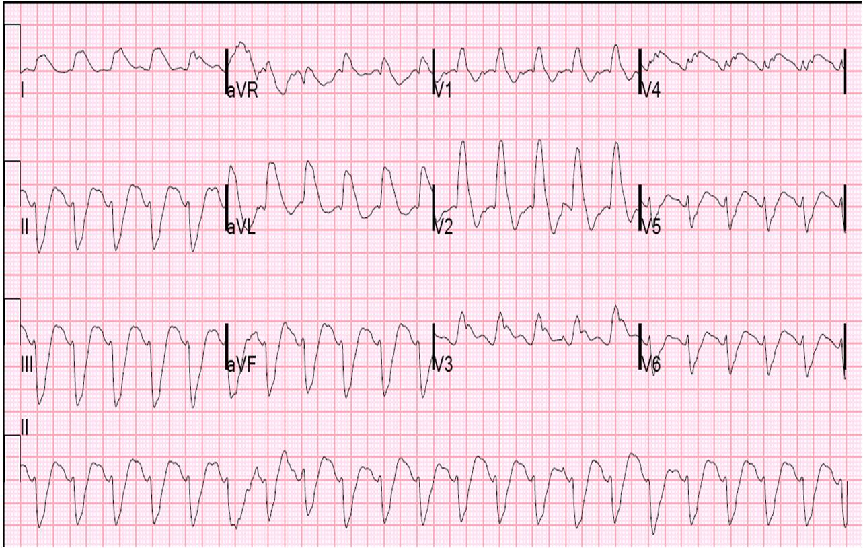 1-05. GRAPHIC DISPLAY OF ELECTROCARDIOGRAM (D) | Cardiac ... |Ekg Examples