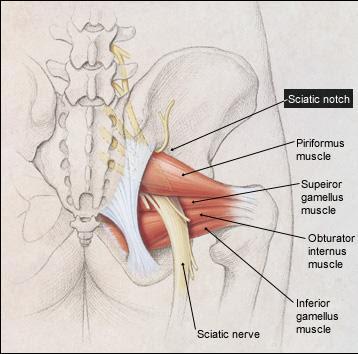 diagram of sciatic nerve pathway obd0 to obd1 wiring medical drug reference: sciatica
