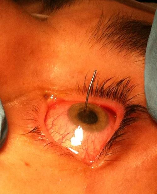 102610-needle-in-eye.jpg