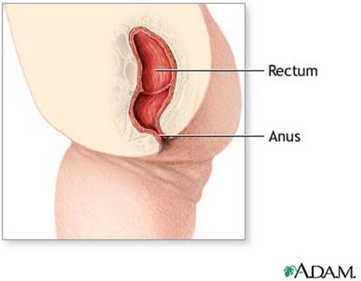 Congenital Anal Atresia 116