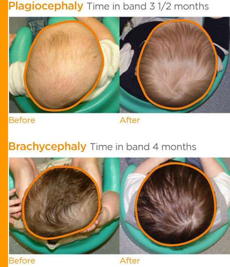 Plagiocephaly Treatment In Adults Amp Infants With Pictures