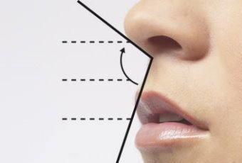 Rinoplastia, todo sobre la círugía de nariz 0