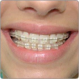 Fadzilla Musanti Perawatan Gigi Untuk Si Behel