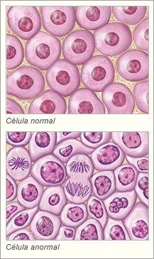 que es cancer biologia antihelmintic pentru copii de la 2 ani