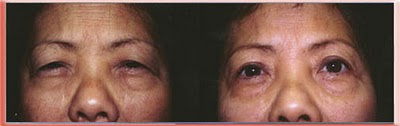 Asian upper blepharoplasty