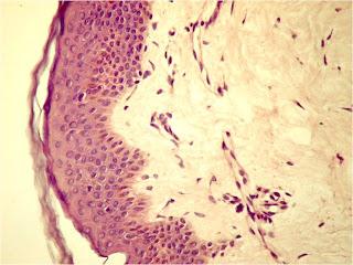 tipuri de cartilaj de țesut conjunctiv