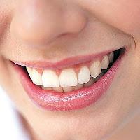 dantys, sypsena, dantis, burna, moters sypsena