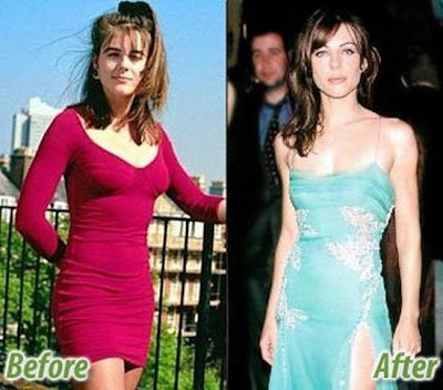 Plastic Surgery Celebs Before And After Thecount Com