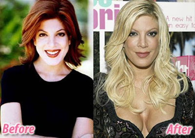 Plastic Surgery Celebs Before And After Thecountcom