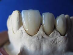 Lucrare dentara