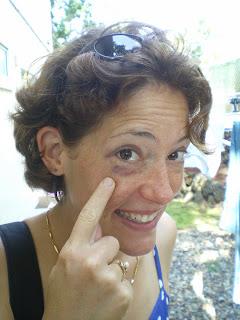 The black eye I got from boogie boarding in the ocean. See? It's dangerous.