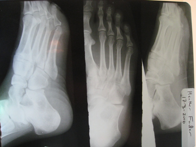 Normal Child Foo...Xray Of Childs Foot