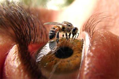 Las enfermedades más curiosas y extrañas del mundo
