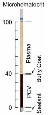 analis laboratorium kesehatan: MICRO HEMATOCRIT