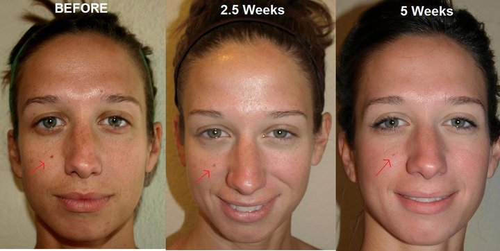 Amazing Skin With Rodan Fields Before Amp After Pics