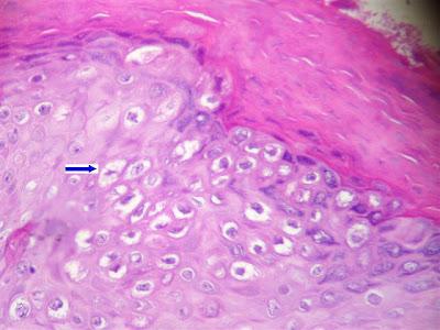 virus papiloma biopsia