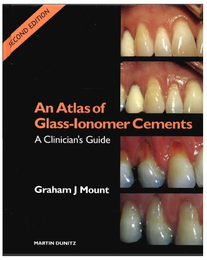 111 Download An Atlas of Glass lonomer Cements A Clinicians Guide 2nd edition pdf