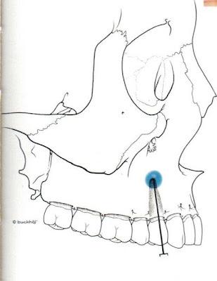 Technique d'anesthésie des prémolaire superieur. ~ [ Club