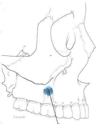 Technique d'anesthésie des molaires superieurs. ~ [ Club