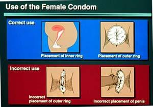 How do female condoms work apps directories